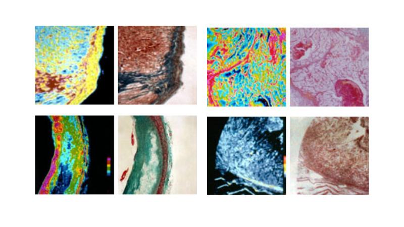 img_research_practical_use_medical_ultrasonic_microscope_01